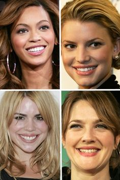Believe it or not, all of these lovely ladies needed braces!