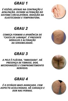 Revital - O Anti-Celulite Número 1 do Brasil [SITE OFICIAL] Health Tips, The Cure, Fitness, Homemade Beauty Tips, Beauty Box, Dog Recipes, Sedentary Lifestyle, Remedies, Food And Drinks