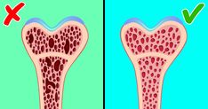 Your Bones Are Getting Weaker Year After Year, but There Are Ways toKeep Them Healthy