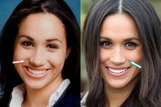 Meghan Markle Plastische Chirurgie – Nase Job, Zähne – vor und nach – Meghan Markle Plastic Surgery – Nose Job, Teeth – Before and After – Tyra Banks Plastic SurgerPop Star Plastic Surgery:Jenny McCarthy Plastic Su Plastic Surgery Photos, Plastic Surgery Procedures, Celebrity Plastic Surgery, Meghan Markle Plastic Surgery, Celebs Without Makeup, Celebrities Before And After, Braces Before And After, Nose Surgery, Celebrity Makeup