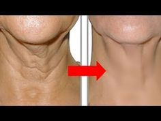 How to get rid of wrinkles on your neck and look younger!- Wie du Falten am Hals los wirst und somit jünger aussiehst! – Daily lifestyle How to get rid of wrinkles on your neck and look younger! Best Anti Aging Creams, Anti Aging Tips, Anti Aging Skin Care, Natural Skin Care, Essential Oils For Face, Neck Wrinkles, Healthy Skin, Skin Care Tips, Grow Hair