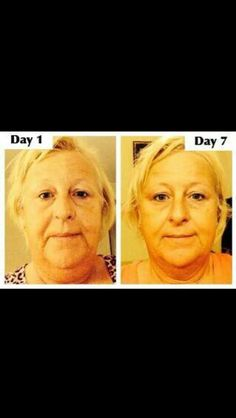 One week using True Science skin care regimen...... Can your skin care do this?? Call Amy @ 419-654-8547 to orders yours now!!
