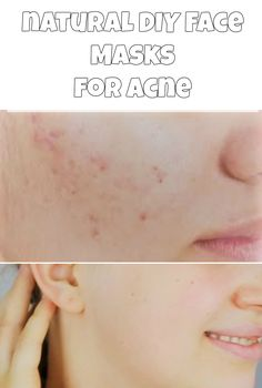 Diy facial cleanser to get rid of acne at home face cleanser best natural diy face masks for acne diy do it yourself homemade face masks acne acne prone oily skin dry skin no more acne at home get rid of acne solutioingenieria Image collections