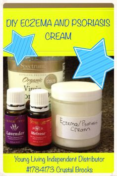 DIY Eczema and Psoriasis Cream Whip 1/2 cup of coconut oil and add 25 drops of Melrose Essential Oil Blend and 25 drops of lavender essential oil. How's that for easy? http://www.ylwebsite.com/crystalbrooks