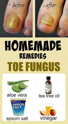 HOME REMEDIES FOR TOE FUNGUS// . ,. / . , ./