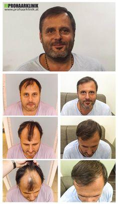 http://www.prohaarklinik.at/haartransplantation-vorher-nachher-bilder/  Haartransplantation Videos - PROHAARKLINIK  Michael mit seinem ausgezeichneten Spenderzone war keine große Herausforderung für Haartransplantation, da er einen großen und dichten Spenderzone hatte. Haartransplantations Fall, wo der Glatze Zone ist etwas kleiner, als der Spender. Geschehen zu der PROHAARKLINIK.