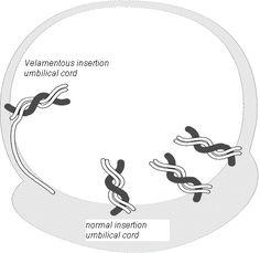 Velamentous Cord Insertion