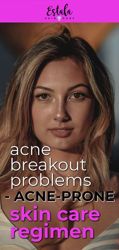 3 Hidden Causes For Your Acne Breakouts Acne-prone skin care regimen for acne breakout problems! A clean face will help give you clear skin with the right acne skin care routine in place. Get more face care tips from Estala Skin Care. Face Care Tips, Skin Care Tips, Acne Skin, Acne Prone Skin, Acne Breakout, Skin Care Remedies, Clean Face, Skin Care Regimen, Clear Skin