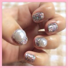 These are so ugly...looks like puss filled tumors on her fingernails!
