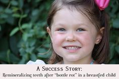 A Success Story: Remineralizing Teeth After Bottle Rot in a breastfed child using nutrient dense foods!