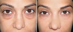 baking-soda-and-turmeric-golden-mix-for-removing-eye-bags-dark-circles