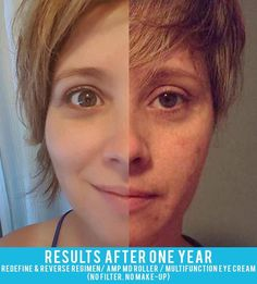 """Posting zero makeup, close-up pictures would not have happened a year ago. It just wouldn't. I found it very difficult the first time I shared my before and after photos, but the desire to share this Rodan & Fields possibility with others was greater than my ego.  Today I'm proud to show everyone.  I gave myself a gift.  A confidence I didn't realize I lacked.    1 year - Reverse and Redefine, amp MD roller and multifunction eye cream."" Kim Kennedy"