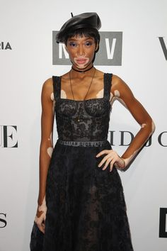 Winnie Harlow Photos - Model Winnie Harlow arrives ahead of the NGV Gala at NGV International on August 2017 in Melbourne, Australia. Model Winnie Harlow, Starred Up, Fashion Events, Daily Photo, Red Carpet Fashion, Stars, Celebrities, Photos, Dresses