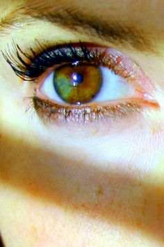 two different colored eyes!  #Heterochromia