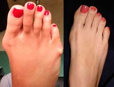 Bunions – causes, treatment, surgery, prevention Lower Back Ache, Back Pain, Beauty Secrets, Beauty Hacks, Foot Odor, Foot Pics, Bunion, Chinese Medicine, How To Get Rid