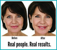 Instantly Ageless is so versatile, under eye bags, wrinkles around the mouth, eyes, forehead etc.