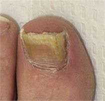 Big Toe nail fungus treatment More information about nail care can be obtained at Pu . Best Toenail Fungus Treatment, Toenail Removal, Dental, Toe Nails, Fungi, Nail Care, Hair And Nails, Big Toe, Frases