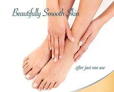 Foot-Perfect-File-Pedi-Electronic-Pedicure-Callus-New-Remover-Roller-Brand-New