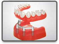 vollstandig Outdoor Decor, Dental Implant Cost, Hungary, Health