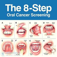 An often forgotten area of dentistry is screening for oral cancer. This is something that EVERYONE can do at home - look for anything white, or red, or raised. This can affect anyone, at any age.