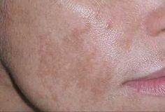 Aprende a quitarte las manchas de la cara