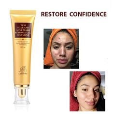 Outstanding cleaning tips hacks are offered on our internet site. Have a look and you wont be sorry you did. Best Acne Scar Removal, Scar Removal Cream, Pimple Scars, Acne Blemishes, Scar Remedies, Skin Care Remedies, Acne Treatment, Skin Treatments, Acne Scar Cream