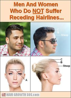 Receding hairlines in men and women are caused by skull expansion - the real reason behind androgenetic alopecia! Learn more. Temple Hair Loss, Grow Hair Back, Natural Hair Regrowth, Receding Hair Styles, Androgenetic Alopecia, Hair Loss Causes, Male Pattern Baldness, Hair Loss Women