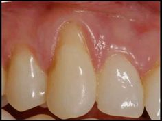 Gum Grafting Surgery performed by Dr. Before and After for receding gums (gingival recession) Providing Gum Grafting Therapy for receding gums for . Gum Graft, Bone Grafting, Cosmetic Dentistry, Plastic Surgery, Teeth Whitening, Dental, Cosmetics, Receding Gums, Oasis