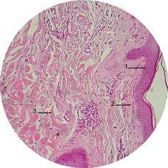 Tecido Conjuntivo: Funções: conexão e sustentação de tecidos/ órgãos, preenchimento de espaço, transporte/ nutrição, defesa, reparação Características: células distintas, células separadas, densidade celular, matriz extracelular