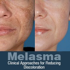 Melasma: Clinical Approaches for Reducing Discoloration. I get this quite often, good article. Skin Care Treatments, Fractional Laser Treatment, Cystic Acne On Chin, Dark Patches On Skin, Spots On Face, Lighten Skin, Hormonal Acne, Shopping, Make Up