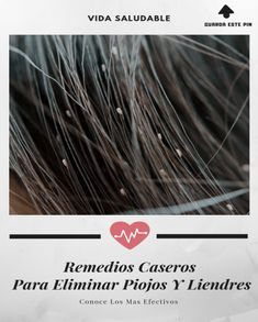 piojos Home Remedies, Hair Accessories, Beauty, Whoville Hair, Health And Beauty, Healthy Living, Remedies, Hair Accessory, Cosmetology