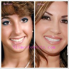 Real Housewives Jacqueline Laurita Plastic Surgery before and after photos