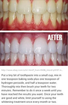 Cleaning teeth...helpful and inexpensive too.