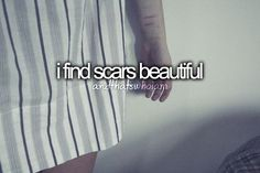 Scars are beautiful to me. They're like battle wounds. They show what you've been through and how strong you are. :)