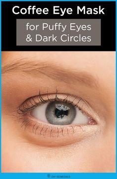 Treating Eye Allergies Naturally