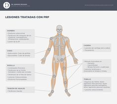 Lesiones tratadas con Plasma Rico en Plaquetas o PRP