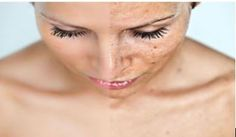 What is hyperpigmentation? Hyperpigmentation is a disorder characterized by dark… – Age Spots Dark Patches On Skin, Age Spots On Face, Age Spot Removal, Sun Damaged Skin, Les Rides, Tips Belleza, Lighten Skin, Skin Treatments, Hair Masks