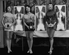 Winning models Marianne Baba (L), Lois Conway (C) and Ruth Swensen standing next to plates of their x-ray during a Chiropractor Beauty contest.