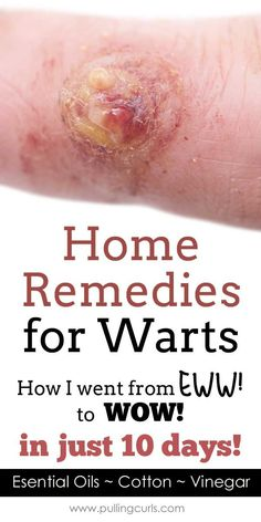 warts remedy | essential oils | oregano | doterra | natural