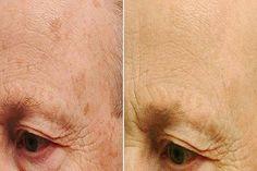 Szabadulj meg az arcon lévő öregedési foltoktól ezzel a recepttel! Arc