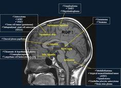 Mri Brain, Brain Tumor, Radiology Imaging, Medical Imaging, Langerhans Cell, Pet Ct, Medical Anatomy, Science Biology, Neurology