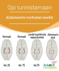 Opi tunnistamaan Alzheimerin varhaiset merkit  #Alzheimerin tauti on etenevä aivosairaus, joka#rappeuttaa aivoja ja vaikuttaa muistin #toimintaan, ajatteluun ja käytökseen.  #Mielenkiintoistatietoa
