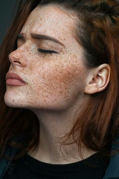 White, redhead ginger, medium, freckles