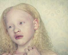 Amazing photographs of people with albinism Beauty amp; San Blas Panama, Beautiful Children, Beautiful People, Albino Girl, Melanism, Photographs Of People, Genetics, Dark Skin, Character Inspiration