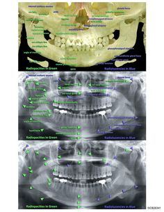 Radiografía panorámica y sus elementos anatómicos Oct 2019 – Wide-eyed Teeth Whitening Products Dentists Dentist Gift Dental Gifts Dental Shirts Dental Hygienist Dental Assistant Study, Dental Hygiene Student, Dental Humor, Dental Hygienist, Oral Hygiene, Dental World, Dental Life, Dental Teeth, Radios