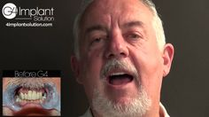Gary Y   G4 Implant Solution Patient Testimonial