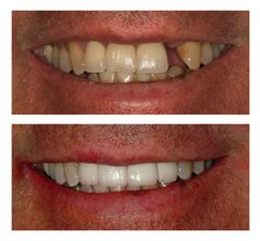 before and after denture pictures | Dental Implants – Before and After