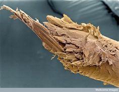 Split end of human hair.