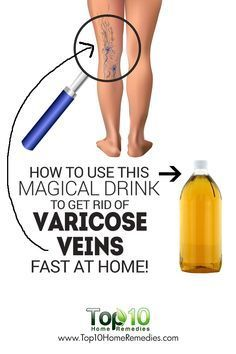 Apple Cider Vinegar- Apply undiluted apple cider vinegar on the skin over the varicose veins and gently massage the area. Do it every day before going to bed and again in the morning. Follow this remedy for a few months to reduce the size of varicose veins. Add two teaspoons of apple cider vinegar to a glass of water and stir well. Drink the mixture twice a day for at least one month to see positive results.