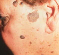 Seborrheic keratosis is a medical term used to define a benign dermatological condition characterized by the presence of harmless skin lesions appearing during the adulthood. It is also known by other names such as basal cell papilloma, senile warts or br